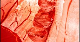 Kankers verdwijnen spontaan en vaker dan gedacht